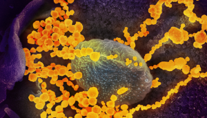 This scanning electron microscope image shows SARS-CoV-2 (round gold objects) emerging from the surface of cells cultured in the lab. SARS-CoV-2, also known as 2019-nCoV, is the virus that causes COVID-19. The virus shown was isolated from a patient in the U.S. Credit: NIAID-RML